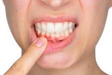 غذاهای شگفت انگیز برای تقویت دندان ها قسمت دوم