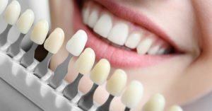 چه عواملی باعث تغییر رنگ دندان های من می شود؟