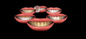 عادت هایی که دندان های شما را لکه دار می کنند