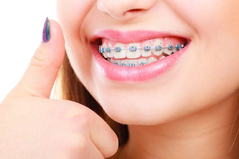 آیا استفاده از دهانشویه برای بریس دندان مناسب است؟