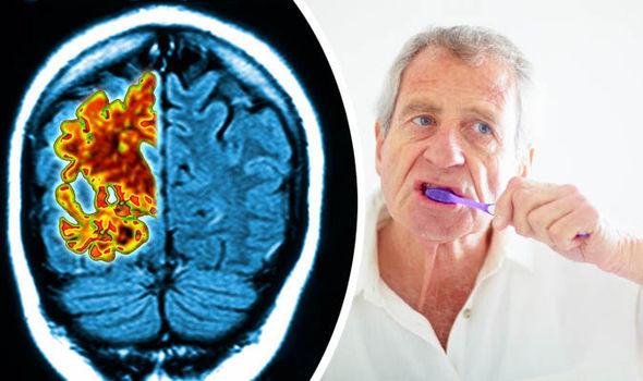 ارتباط آلزایمر بین سلامت دهان و مغز