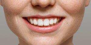 چگونه مینای دندان را تقویت کنیم