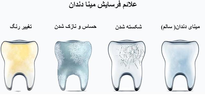 مراحل فرسایش مینای دندان