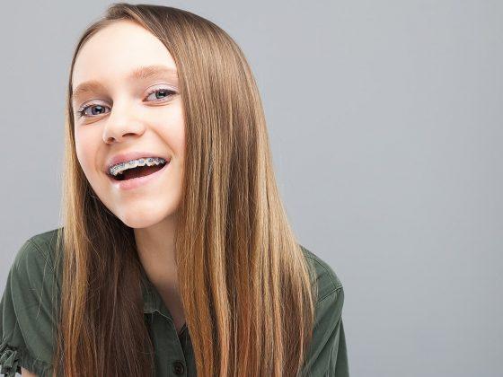 استفاده از نخ دندان برای بریس ارتودنسی